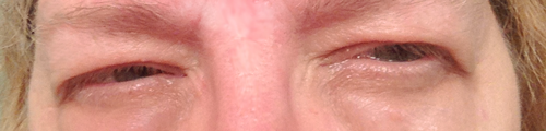 my-swollen-eyes from burnout, stress and vision problems